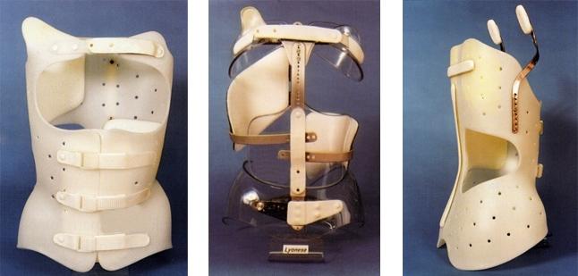corsetto_scoliosi08
