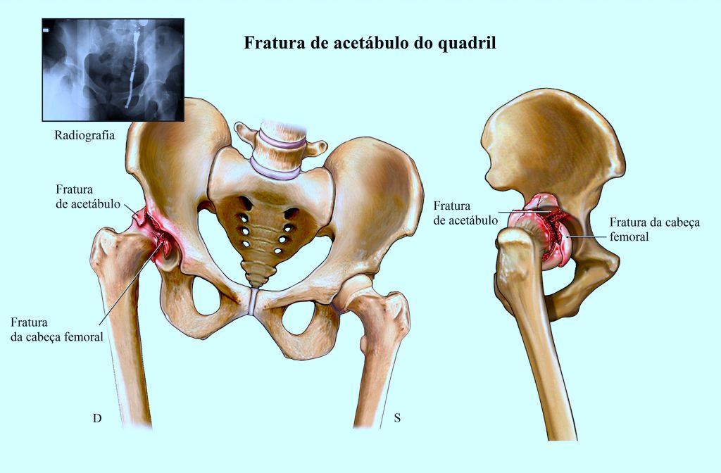 Frattura-dell-anca-1024x672