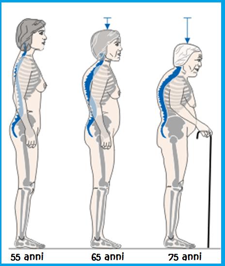 Osteoporosi-e-perdita-di-altezza2