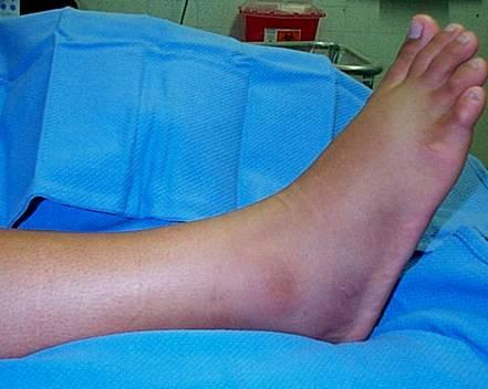 distorsione-caviglia-secondo-grado
