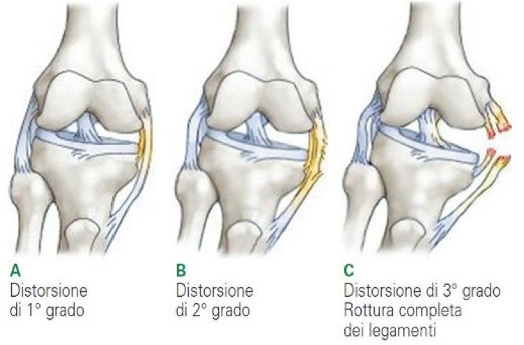 distorsioni-ginocchio