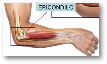 epicondilo1