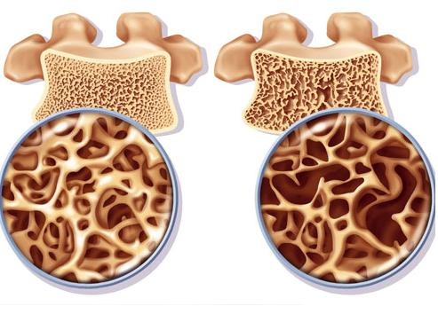 mannino.marco_osteoporosi1-6