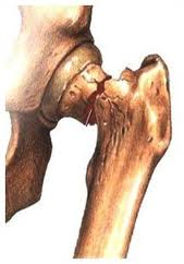 osteoporosi _frattura_femore