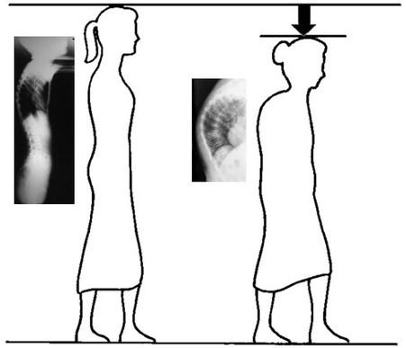 Ginnastica video per pazienti con osteochondrosis