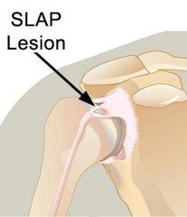 slap-lesion