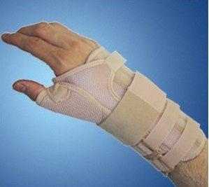 -artrosi dell'articolazione trapezo-metacarpale e metacarpo-falangea del primo dito pollice – lesioni fascia laterale ulnare – pseudoartrosi navicolare